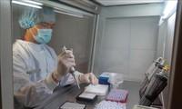 Pengesahan rencana melakukan tes SARS-CoV-2 pada tahap wabah Covid-19