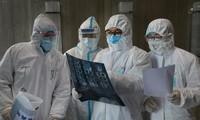 Situation der Covid-19-Pandemie weltweit