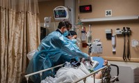 Más de 111,6 millones de casos contagiados del SARS-CoV-2