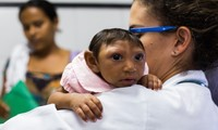 First Zika-infected pregnant woman reported in Europe