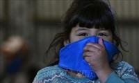Coronavirus : l'OMS étudie un lien possible avec la maladie de Kawasaki