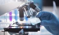 WHO merekomendasikan kepada negara-negara supaya hati-hati dengan kelonggaran pencegahan dan pemberantasan wabah Covid-19