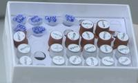 Vietnam crea kits de diagnóstico del virus causante del Covid-19
