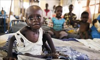 Over 10 million children from African countries to suffer acute malnutrition in 2021: UNICEF