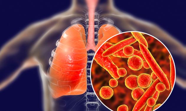 Anwendung der Methoden zum Nachweis der Tuberkulose-Infektionen