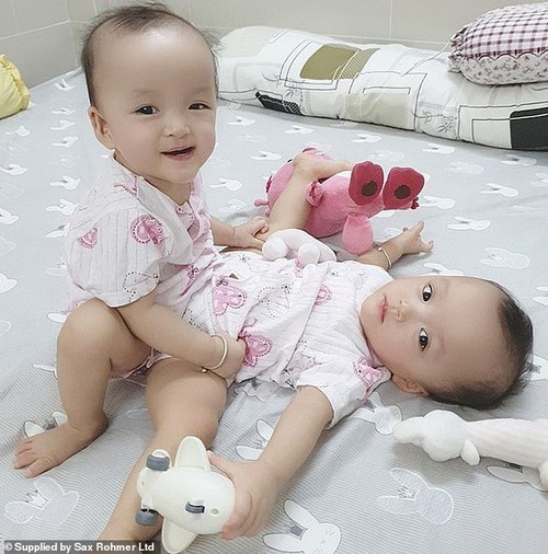 Miraculous separation of conjoined twin  - ảnh 1