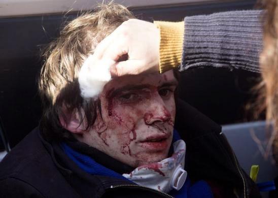 Ucrania vive día violento con 21 muertos - ảnh 2
