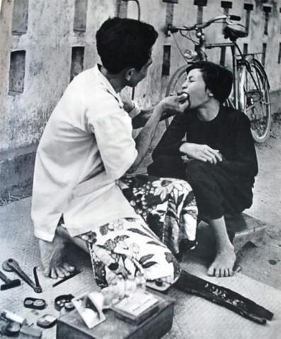 Black teeth: Vietnam's once hot beauty regimen  - ảnh 2