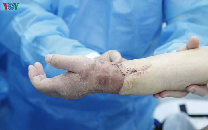 Vietnam successfully performs world's first limb transplant from living donor  - ảnh 2